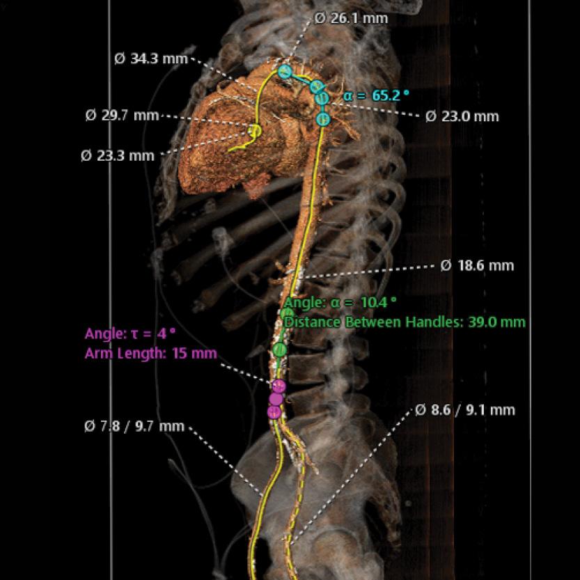 CT-aorta-2-1